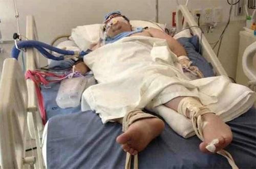 Наплевав на медицинскую страховку, пляжник из Великобритании попал в затруднительную ситуацию на Пхукете