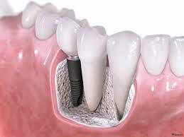 Импланты в современном стоматологическом протезировании